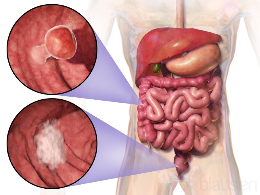 xilonix cancer