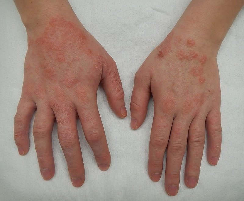 steroid use for allergic reaction