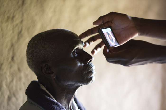 Peek Retina, by social enterprise Peek Vision, is a portable ophthalmoscope. Image Credit: Rolex Joan Bardeletti
