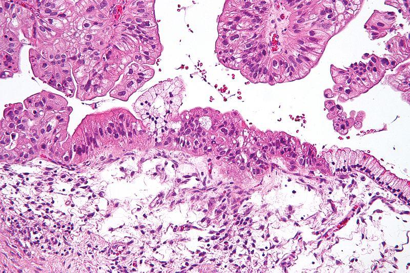 Ovarian Tumour